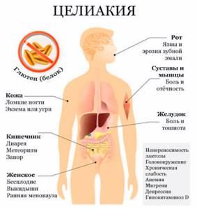 Вздутие живота: причины и лечение газообразования после еды, при беременности, у детей, таблетки от вздутия