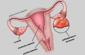 Боровая матка при эндометриозе - помогает или вредит?