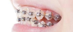 Брекет-системы: виды, сколько носить, чтобы выровнять зубы, сколько стоит установка
