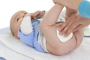 Пеленочный дерматит у детей: лечение, как выглядит, профилактика