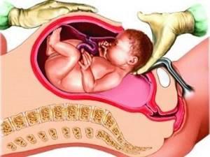 Анестезия при кесаревом сечении и родах