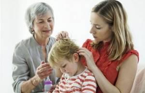 Лечение педикулеза у детей, откуда берутся вши и как их вывести?