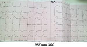 Ишемическая болезнь сердца, симптомы, варианты развития заболевания