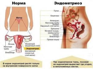 Гипертонус матки при беременности: симптомы, лечение, причины, чем опасен
