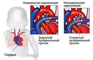 Врожденный порок сердца: признаки у новорожденных, последствия, диагностика, причины и группы риска