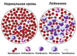 Лейкоз: симптомы, лечение, прогноз