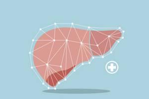 Цирроз печени: симптомы, лечение, сколько с ним живут