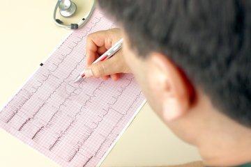 ЭКГ: норма, расшифровка показателей и результатов исследования