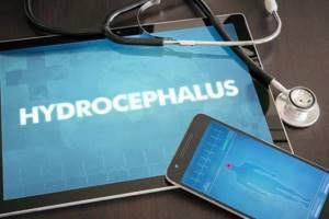 Гидроцефалия у детей: симптомы, лечение, прогноз