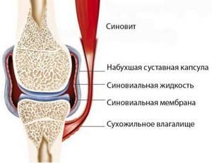 Синовит коленного сустава: симптомы, лечение, диагностика, классификация