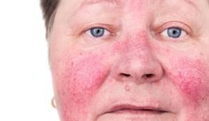 Аллергия вокруг глаз - симптомы, лечение, фото