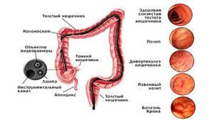 Язвенный колит кишечника - симптомы, лечение