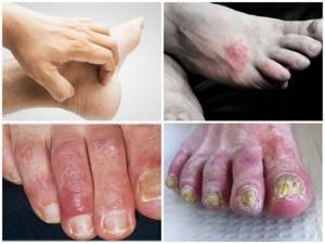 Грибок стопы - симптомы и причины появления
