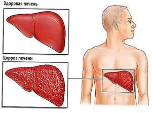 Заболевания печени: симптомы, диагностика печеночных патологий