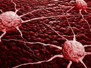 Причины рака: как не заболеть раком, факторы риска онкологии и профилактика