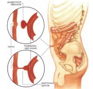 Дивертикулез кишечника: симптомы, лечение