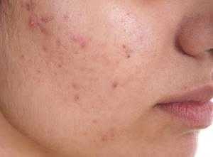 Золотой ус: лечебные свойства, противопоказания, рецепты приготовления