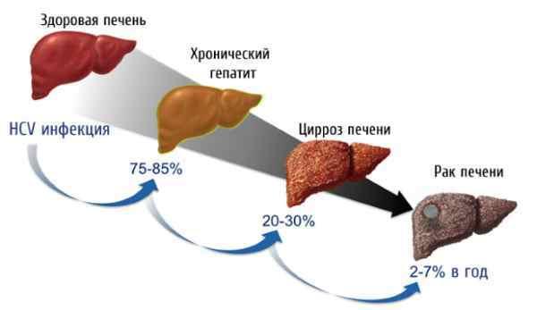 Гепатит С сколько с ним живут, последствия