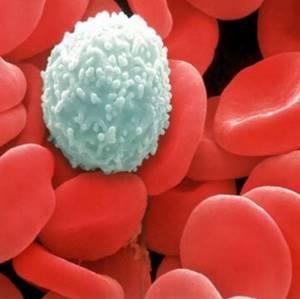 Повышенная мочевая кислота в крови: норма, почему повышается или понижается ее уровень, что делать