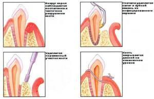 Гингивит: симптомы, лечение, причины