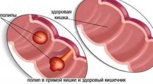 Полипы в кишечнике: симптомы, лечение, удаление