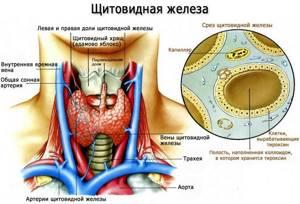 Гипотиреоз: симптомы, лечение