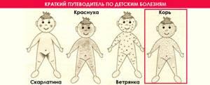 Краснуха при беременности: чем опасна, профилактика