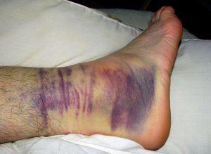 Перелом лодыжки: симптомы, причины, первая помощь, лечение, реабилитация, прогноз