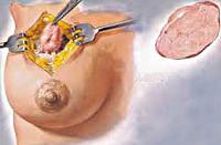 Аденома молочной железы: лечение, симптомы, операция