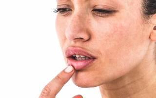 Винилин при стоматите - лучшее средство от стоматита бактериального