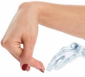 Гигрома запястья, кисти: лечение, симптомы, причины, операция, что после удаления