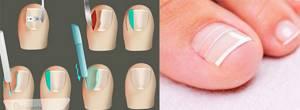 Причина вросшего ногтя у женщин - ношение балеток, педикюр и беременность