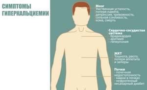 Недостаток кальция в организме: симптомы, продукты, содержащие кальций, лекарства