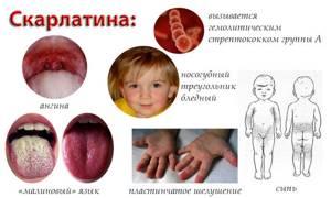 Признаки скарлатины у детей, сыпь, ангина, шелушение