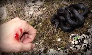 Укусы змей: первая помощь, отличие ядовитой змеи, что делать после укуса паука или ядовитой змеи