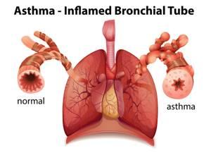 Бронхиальная астма у детей: симптомы, лечение, препараты помощи при приступах