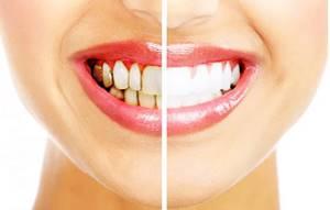 Зубной камень (налет): удаление, чистка, ультразвук, цена, как убрать в домашних условиях