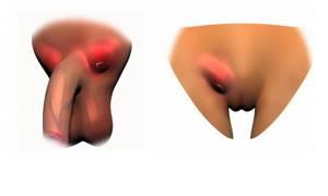 Паховый лимфаденит: симптомы, лечение, причины воспаления лимфатических узлов в паху, диагностика