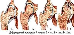 Артроз тазобедренного сустава: лечение, симптомы