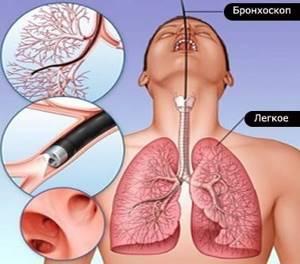 Бронхоскопия: подготовка, как делают, показания, результаты, последствия после процедуры