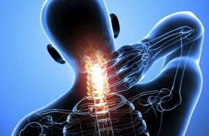 Грыжа шейного отдела позвоночника: симптомы, лечение, операция, упражнения, массаж
