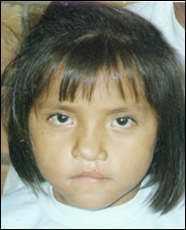 Волчья пасть у детей: причины патологии у человека, лечение, фото до и после операции
