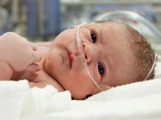 Церебральная ишемия у новорожденных: симптомы, степени, причины, лечение, последствия