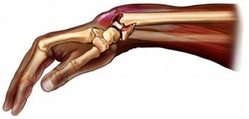 Перелом или вывих, растяжение или ушиб - как отличить, первая помощь
