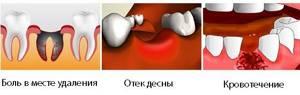 После удаления зуба: что делать, чем полоскать, боль, десна, кровь, опухла щека, рана, осложнения