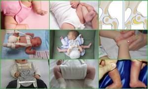 Дисплазия тазобедренного сустава у новорожденного ребенка