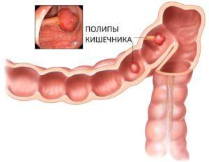 Кровотечение из заднего прохода: причины, лечение, что делать