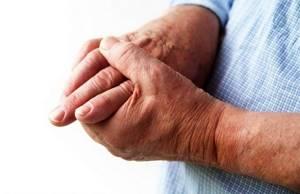 Артрит пальцев рук