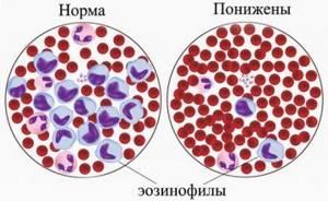 Эозинофилы в крови повышены: причины, норма, что значит результат у детей и взрослых