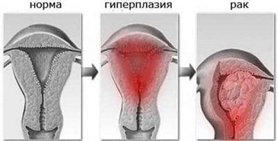 Гиперплазия эндометрия: лечение, симптомы, причины возникновения